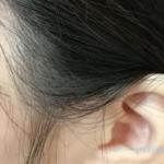 洗い方検証arau編で、頭皮5プッシュ+髪は2プッシュを複数回×1度洗いを試して1日目のもみあげ周辺。フケがちょっとある