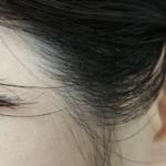 洗い方検証arau編・頭皮6プッシュ+髪は2プッシュを複数回×1度洗いの3日目(実質4日目)のもみあげ付近の様子。フケが出ている