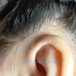 ROGブーケオブロマンスを試して3日目の耳周辺の写真