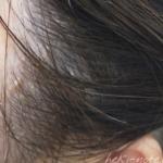 ココパーム使用翌日の頭皮の写真。耳周辺