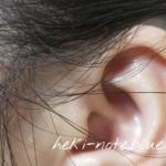 DROASを使う前の頭皮の様子。耳周辺