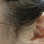 DROASを使って3日目の頭皮の様子。耳周辺