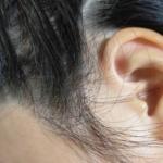 ダイアンミラクルユーシャインシャインを使って3日目の頭皮の様子。耳周辺~おでこの近く