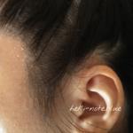 ココンシュペールエアリーブルームを使って1週間くらいの頭皮の様子。フケが生え際にいっぱい