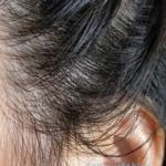 クリームシャンプーMeeを使って5日目くらいの頭皮の様子。耳周辺