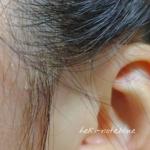 &bioを使って3日目の頭皮の様子。耳周辺