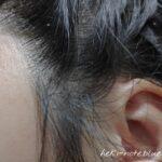 ululisを試して通算4日目の頭皮の様子。耳周辺