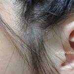405クレンジングコンディショナーを2回目に試した時の頭皮の様子。耳周辺